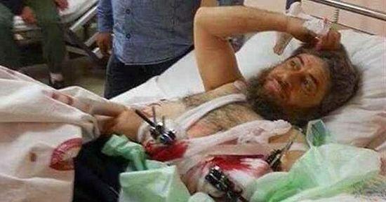 Тяжело раненый исламист принял христианство